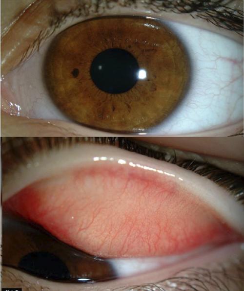 fotos de ojos con conjuntivitis