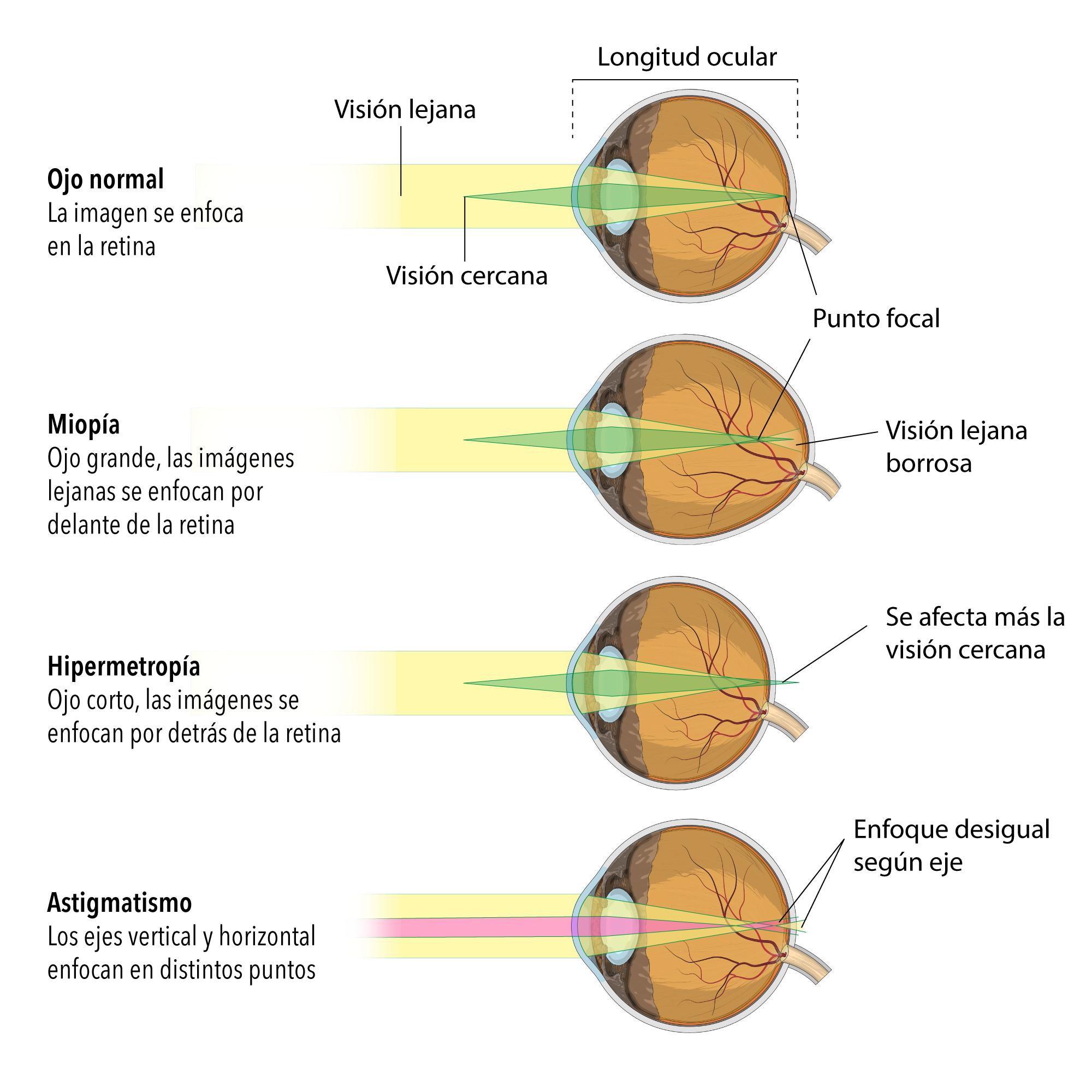 6b59109048 Sociedad Española de Estrabología: Miopía, hipermetropía y astigmatismo